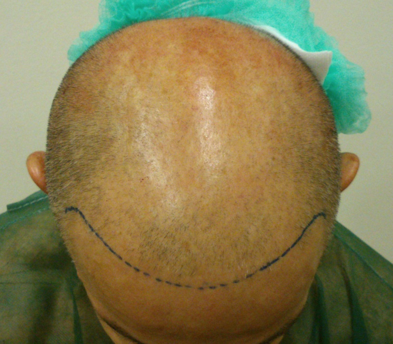 The Doctor's Hair Transplant