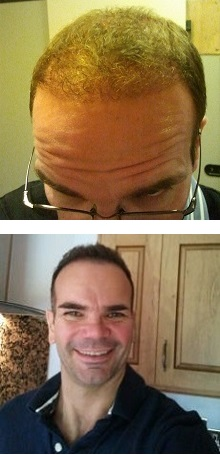 barry-hair-transplant-results
