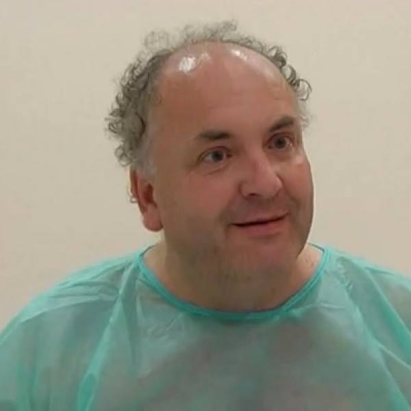 Ralph Blumson Before Hair Transplant