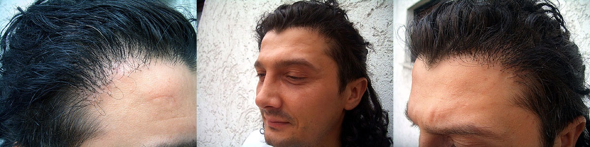 Warning Beware Of Fue Hair Transplant Turkey