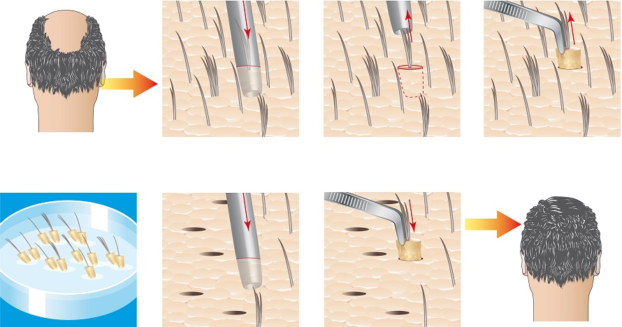 fue hair transplant explanation image